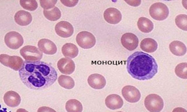 Повышение лимфоцитов и моноцитов в крови у мужчин и женщин: причины и последствия
