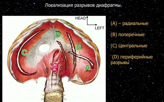 Релаксация диафрагмы: что это такое, симптомы, лечение, флюорография, рентген
