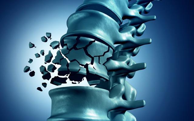 Мультиспиральная и спиральная компьютерная томография, МСКТ: что это такое, разница с МРТ