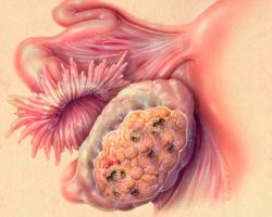 Опасен ли результат 29,6 онкомаркера СА-125?