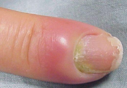 Нарыв на пальце: как лечить и что делать при нарыве на пальце возле ногтя