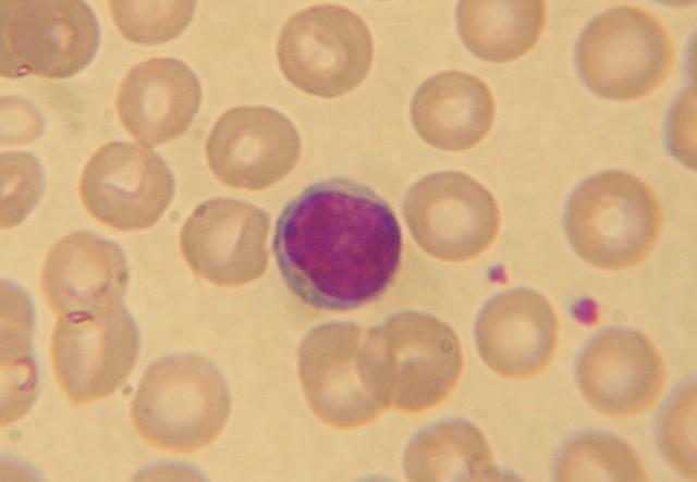 Повышены базофилы у ребенка, у взрослого в крови: о чем говорит симптом, что это значит