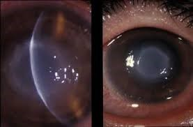 Акантамебный кератит: фото, когда возникает, диагностика, симптомы и лечение