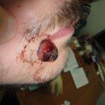 Пиогенная гранулема кожи: что это такое, фото, симптомы, лечение, гистология