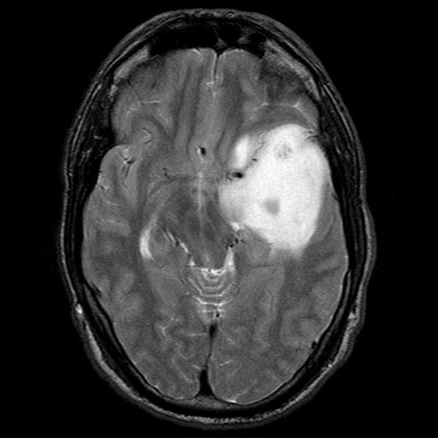 Астроцитома головного мозга у детей: что это такое, симптомы и лечение, МРТ, КТ