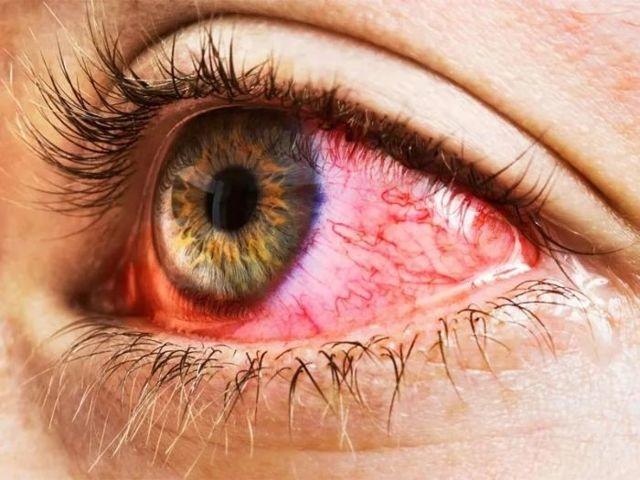 Покраснел, болит глаз у взрослого и ребенка: причины, что делать в домашних условиях