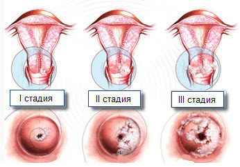 Крауроз вульвы у женщин: что это такое, причины, стадии, симптомы, лечение