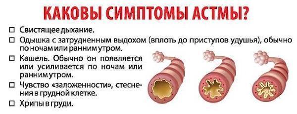 Предастма: что это, причины, симптомы у детей и взрослых, диагностика, лечение