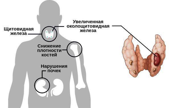Что такое гиперпаратиреоз, симптомы и лечение, последствия