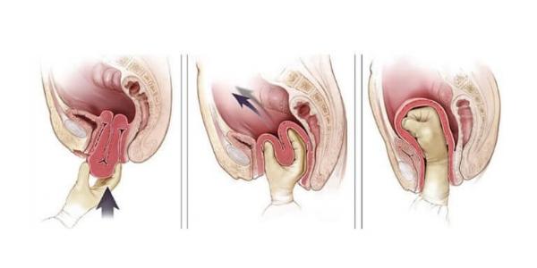 Самопроизвольный выворот матки при родах и после родов: причины и лечение
