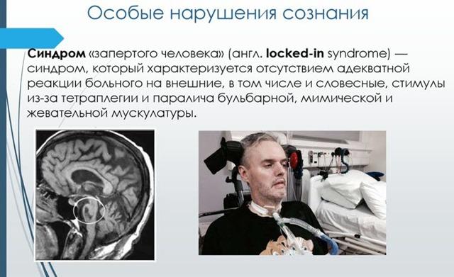 Синдром Лемьера: что это, причины, симптомы, диагностика, лечение, как распознать