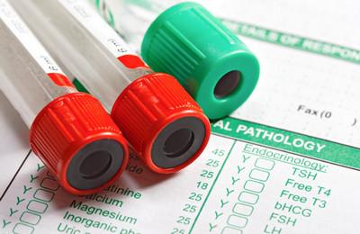 Повышены лимфоциты в крови: что это значит у мужчин и женщин, причины лейкоцитоза
