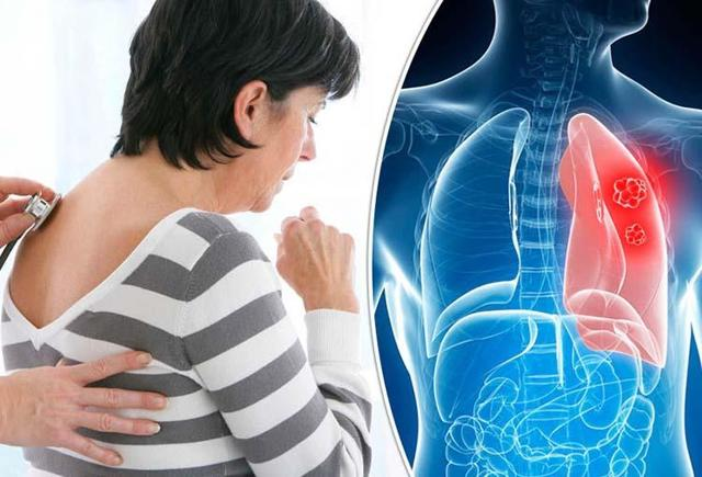 Периферический рак легкого: причины, симптомы, рентген-диагностика, лечение, профилактика