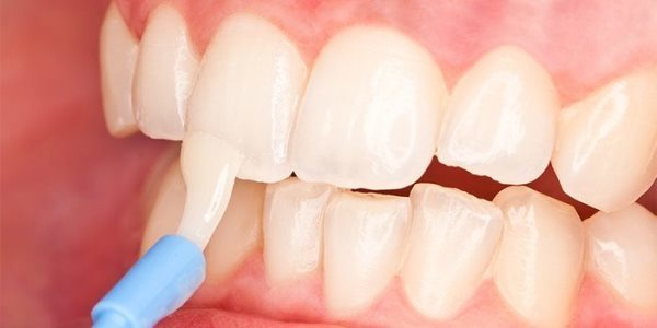 Раскололся зуб пополам и начал шататься, что делать?