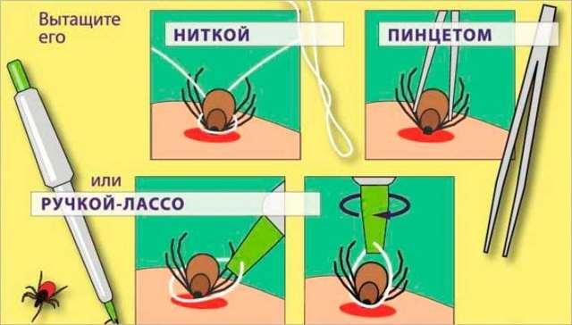 Укус клеща у человека: признаки, последствия, лечение укуса клеща у человека