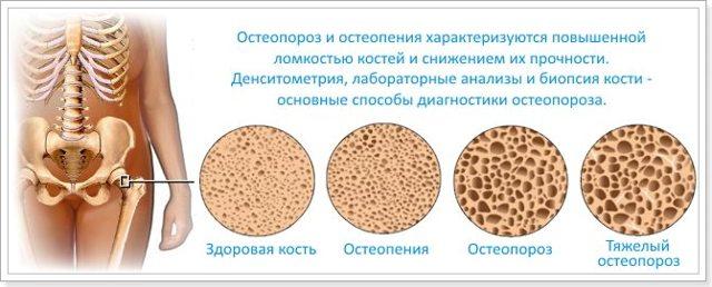 Денситометрия костей: что это такое и как ее проводят?