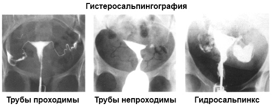 Гидросальпинкс: что это такое, симптомы, лечение, диагностика на УЗИ, рентгене, МРТ