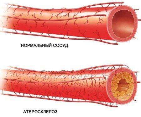 Какие травы чистят сосуды от холестерина и улучшают мозговое кровообращение