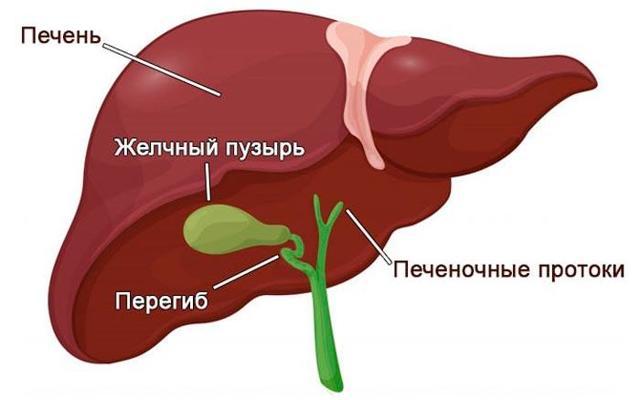 Загиб, перекрут шейки, тела желчного пузыря у взрослых: причины, симптомы, лечение и последствия