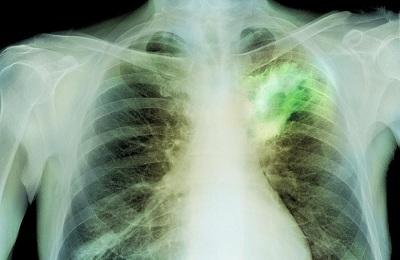 Абсцедирующая пневмония: что это такое, причины, симптомы, диагностика, рентген, лечение