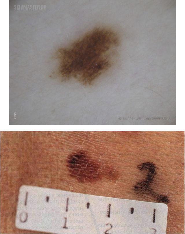 Диспластический меланоцитарный невус кожи: что это такое, степени, диагностика, лечение, удаление