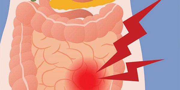 Что делать при поносе и сильных болях в животе