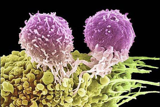 Можно определить по уровню ИС и ВН срок заражения ВИЧ?