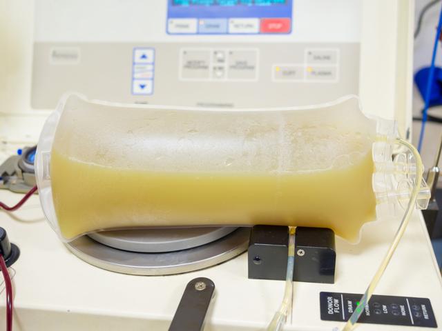 Методы очистки крови, плазмаферез: показания, противопоказания, плюсы и минусы