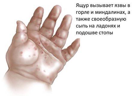 Болезнь ящур у людей: симптомы, лечение и профилактика ящура