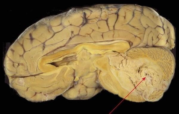 Медуллобластома головного мозга у детей: что это такое, лечение, выживаемость, прогноз