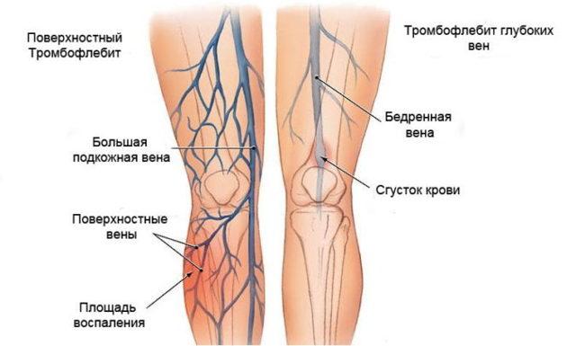 Нефрэктомия, операция по удалению почки – как проходит, осложнения, подготовка, лапароскопия