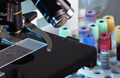 Сдвиг лейкоцитарной формулы вправо: что это значит у детей и взрослых, причины