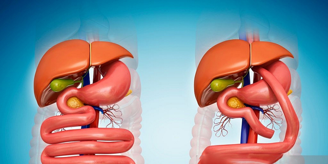 Что такое шунтирование желудка, зачем оно применяется, результаты операции, последствия, осложнения
