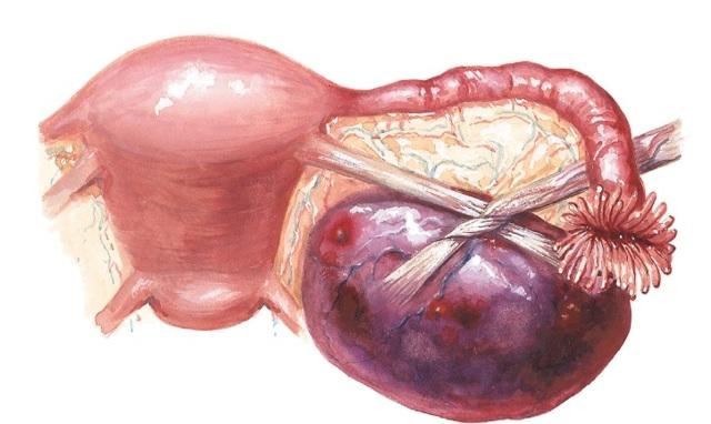 Некроз миоматозного узла: симптомы и лечение, при беременности