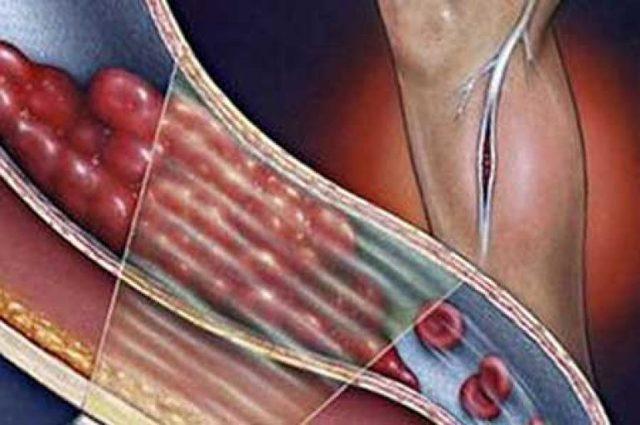 Гнойный тромбофлебит: причины, симптомы, диагностика, лечение, фото