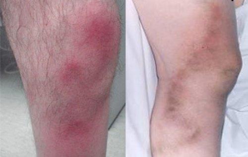 Мигрирующий тромбофлебит: причины, симптомы, диагностика, лечение, профилактика