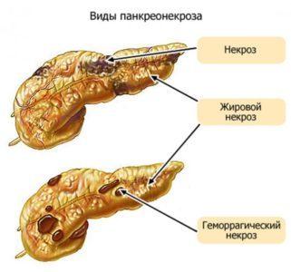 Геморрагический панкреатит: что это такое, причины, симптомы, за какое время развивается
