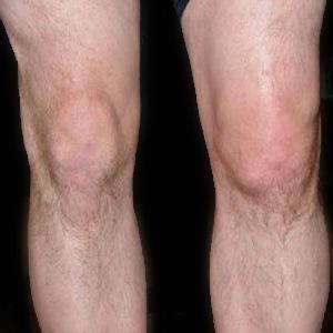 Жидкость в колене: что делать, лечение, почему собирается жидкость в колене