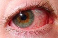 Туберкулез глаз: что это такое, причины, симптомы, признаки, лечение, диагностика