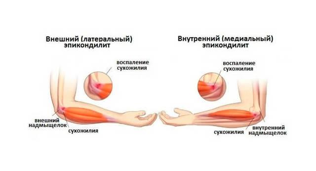 Медиальный эпикондилит плеча, локтевого сустава: симптомы, лечение, упражнения
