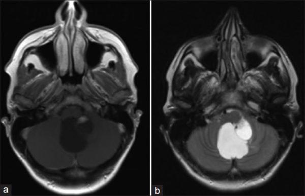 Астроцитомы головного, спинного мозга, мозжечка: симптомы и лечение, мрт, злокачественность