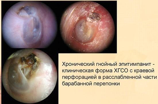 Эпитипанит: причины, течение, симптомы, диагностика, лечение, профилактика, риски