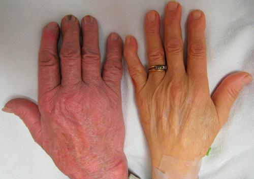 Серповидноклеточная анемия человека: что это, симптомы, как наследуется генная мутация