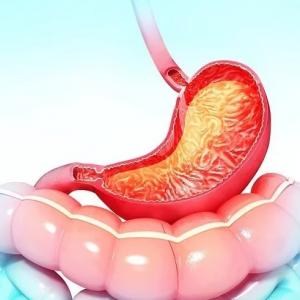 Ахлоргидрия желудка: что это такое, причины, симптомы, диагностика, лечение, профилактика