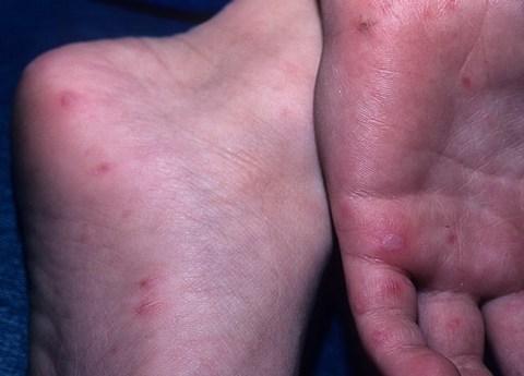 Красные пятна у ребенка по ногам, рукам, на попе, под коленями, около рта, на ладошках: что это