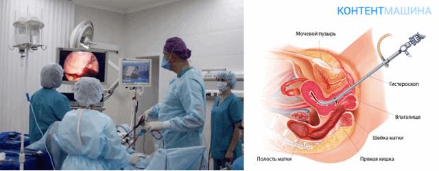 Диагностическая и лечебная гистероскопия матки в гинекологии: что это такое, показания
