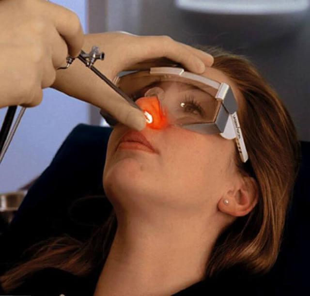 Синехии полости носа: что это такое, причины, симптомы, диагностика, лечение