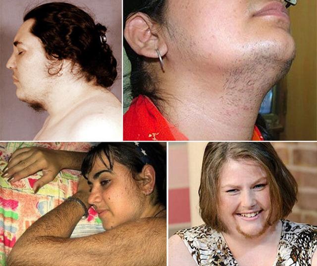 Вирильный синдром, вирилизм у женщин: что это такое, симптомы, диагностика и лечение