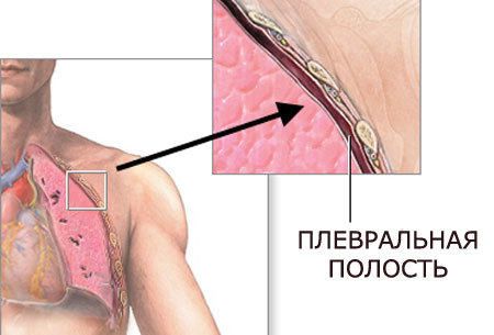 Открытый пневмоторакс: что это, первая неотложная помощь, рентген, симптомы и лечение