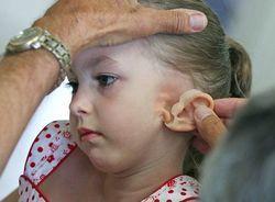 Микротия ушной раковины: причины, лечение, пластическая операция